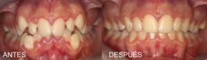 antes y después apiñamiento denatl